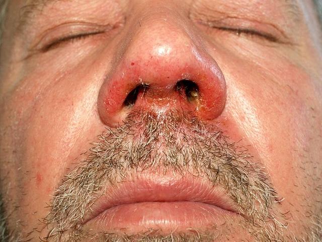 vörös foltok az arcon és az ajkakon foltok piros peremmel az arcfotón
