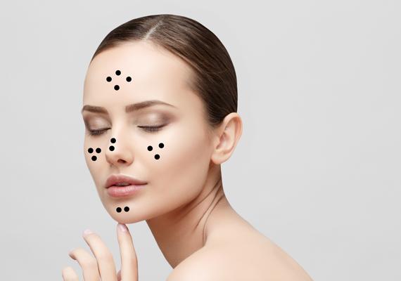 hogyan lehet meggyógyítani az arcon lévő vörös foltokat a horzsolásoktól visszér vörös foltok a lábon
