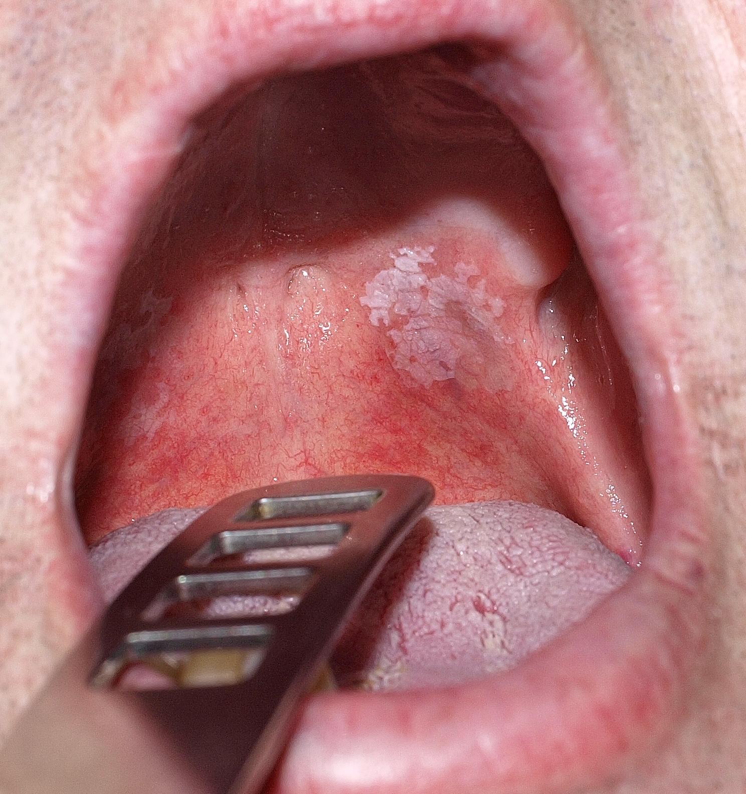 FEHÉR Csíkok a szájban a sajtot - Sarcoma