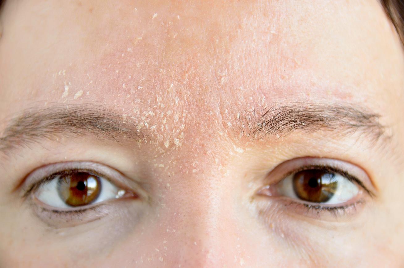 hámló bőr az arcon és vörös foltok mit kell tenni hogyan kell kezelni a pikkelysmr otthoni tenyern