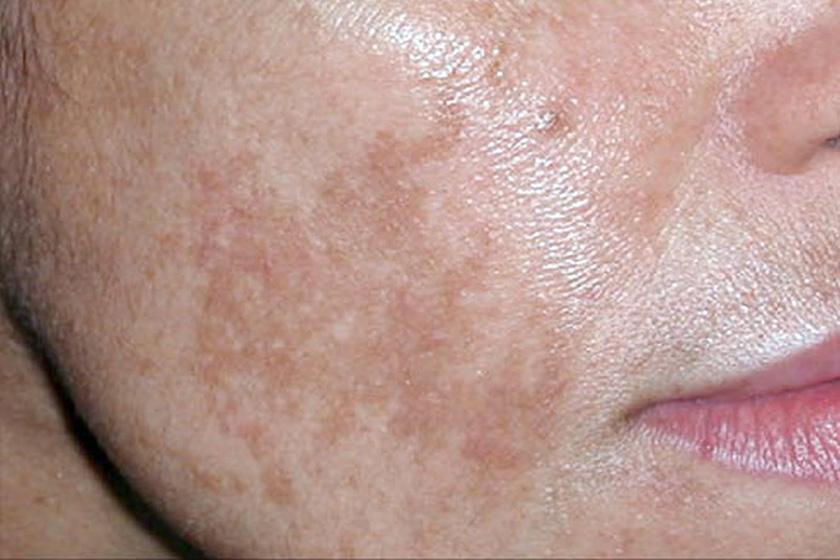 pustularis psoriasis barbera kezels piros vizes foltok a láb belső részén mi ez