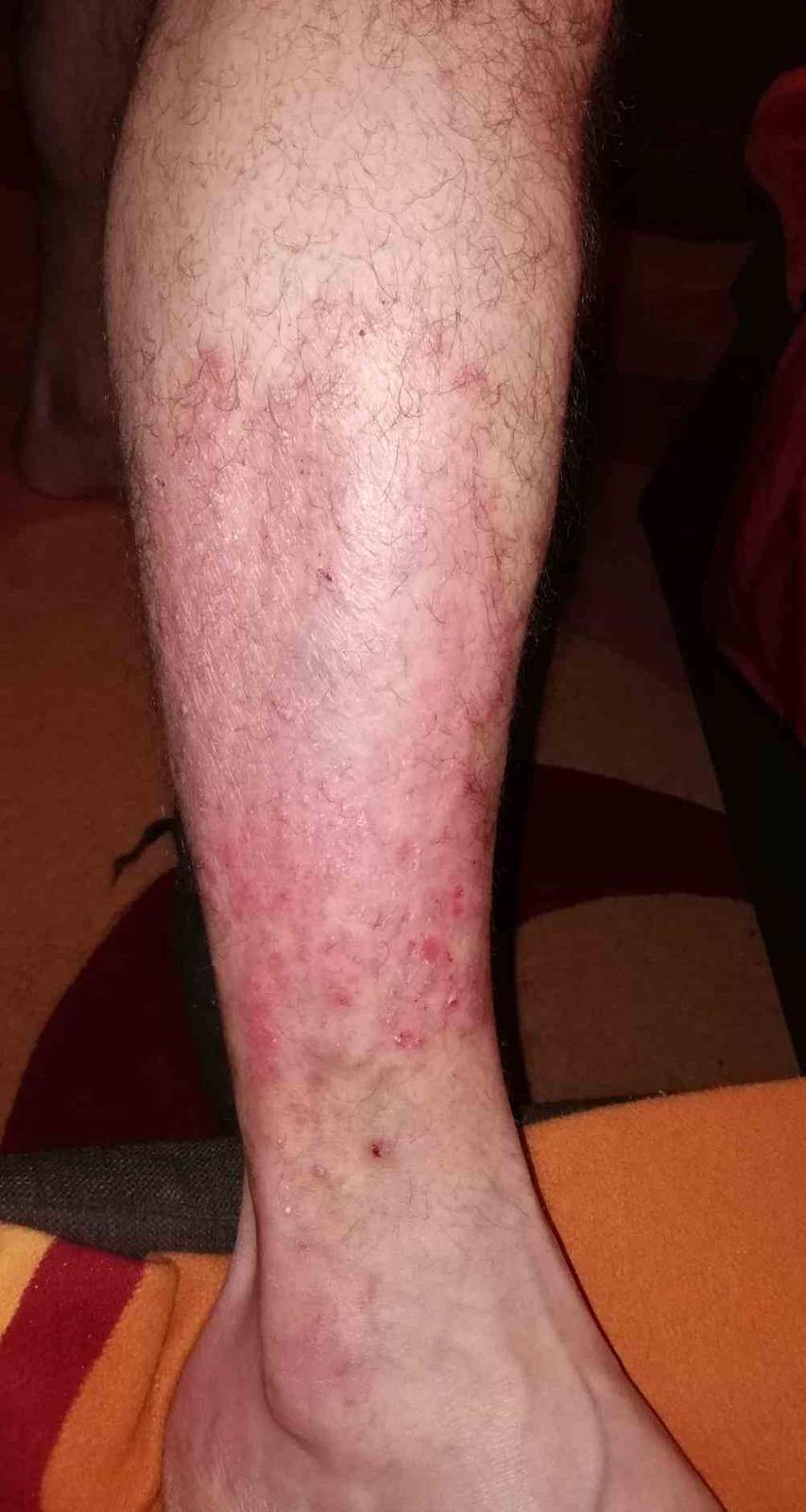 vörös könyök a könyökön hámlik pikkelysömör tünetei és kezelése fotók