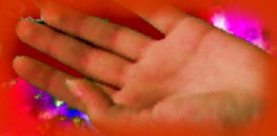 vörös foltok húzódnak az ujjakon milyen gygyszerek kellenek pikkelysömörhöz