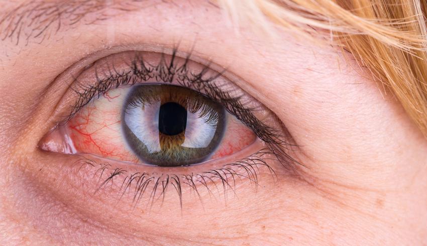 Hogyan lehet kezelni a vörös pikkelyes foltokat a fején - Nyomás