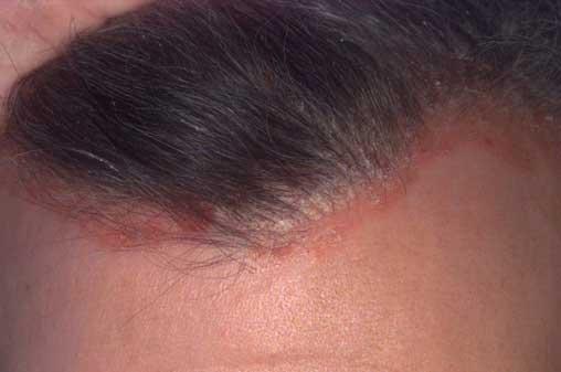 pikkelysömör hogyan kell kezelni a seborrheás dermatitist
