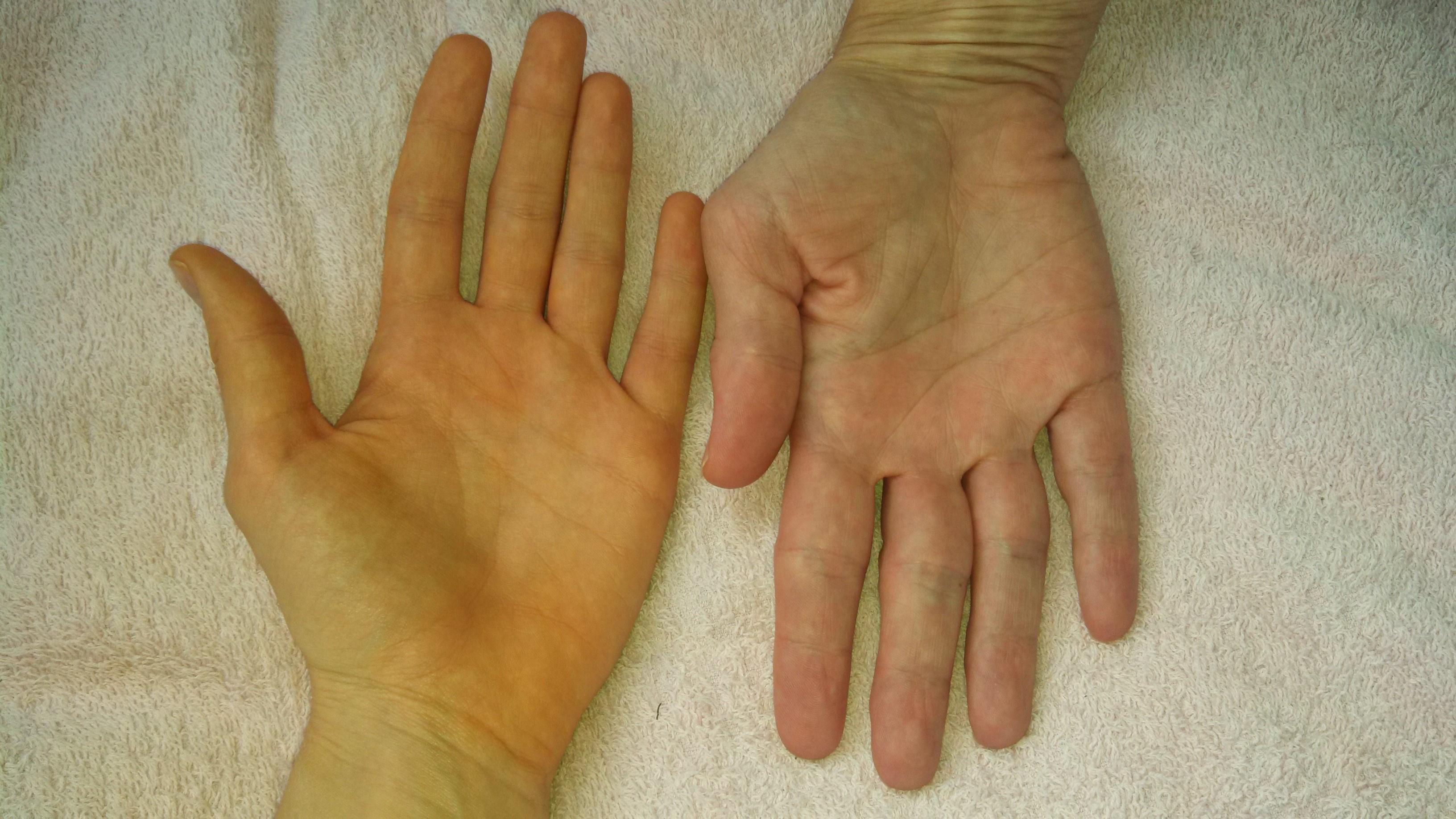 piros nagy foltok a lábakon viszketnek pikkelysömör kezelés agyag