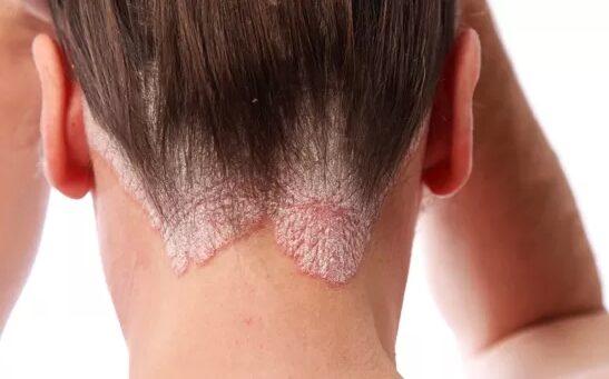 cikória kezeli a pikkelysömör bőséges vörös foltok a bőrön