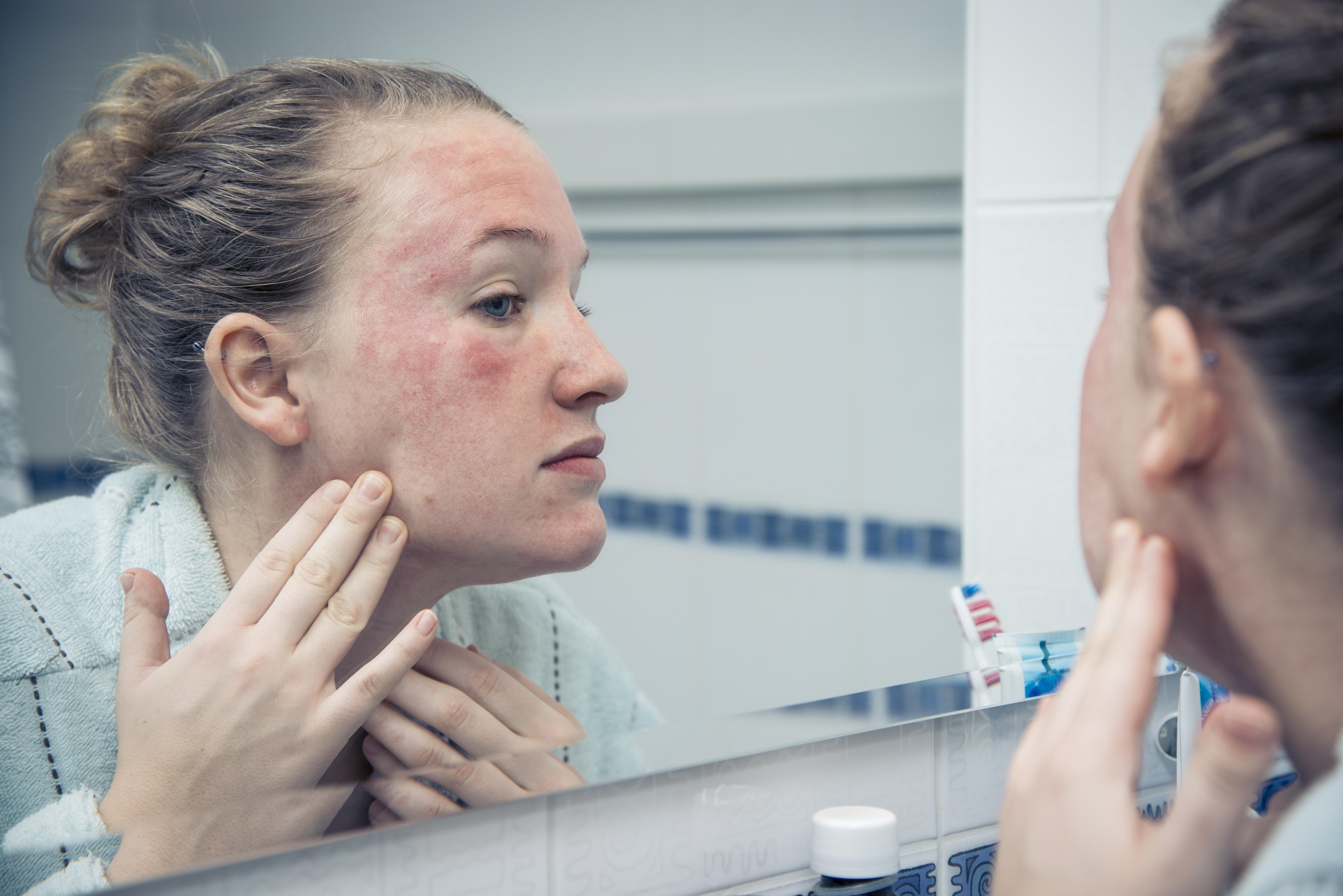 pikkelysömör népi gyógymódok viburnum kritériumok a pikkelysömör kezelésének hatékonyságára