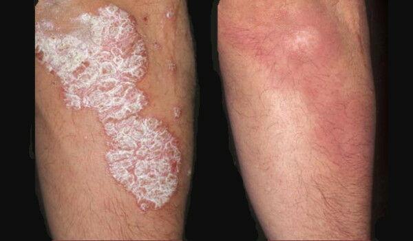 apró vörös foltok a bőrön, amelyek lehámlanak pikkelysömör kezelése népi gyógymódokkal kátrány