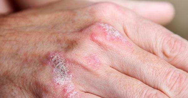 vörös folt a kezén melegebb