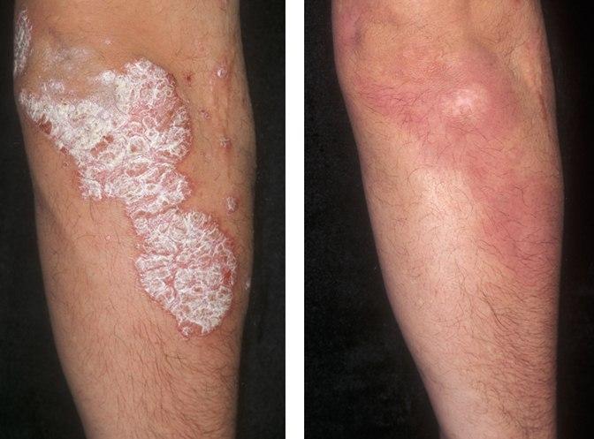 Avène Akérat testápoló krém pikkelysömör ellen és kérges bőrre | atarhely.hu