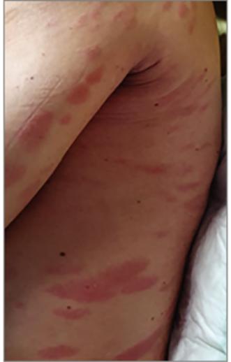 Piros foltok a lábszáron - Bőrgyulladás November
