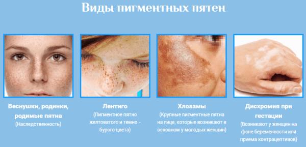 hogyan lehet megszabadulni az arcon lévő vörös pangó foltoktól pikkelysömör fotó a kezdeti stádiumú fotóról hogyan kell kezelni