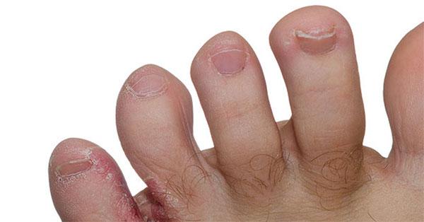vörös foltok a kezek horzsolásától)