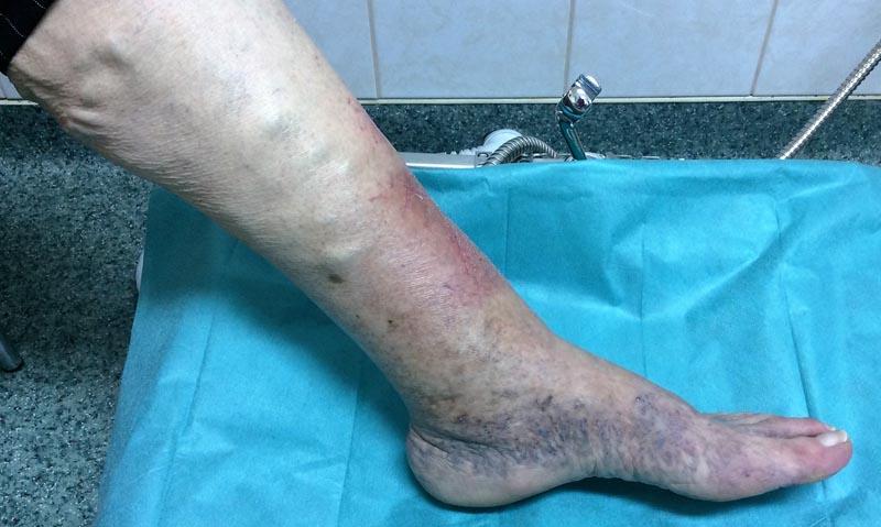 vörös foltok a láb bokáján és a boka duzzanata