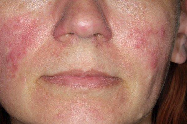 kiütések az arcon vörös foltok formájában