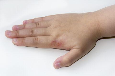 hogyan lehet megszabadulni a kezén lévő vörös foltoktól