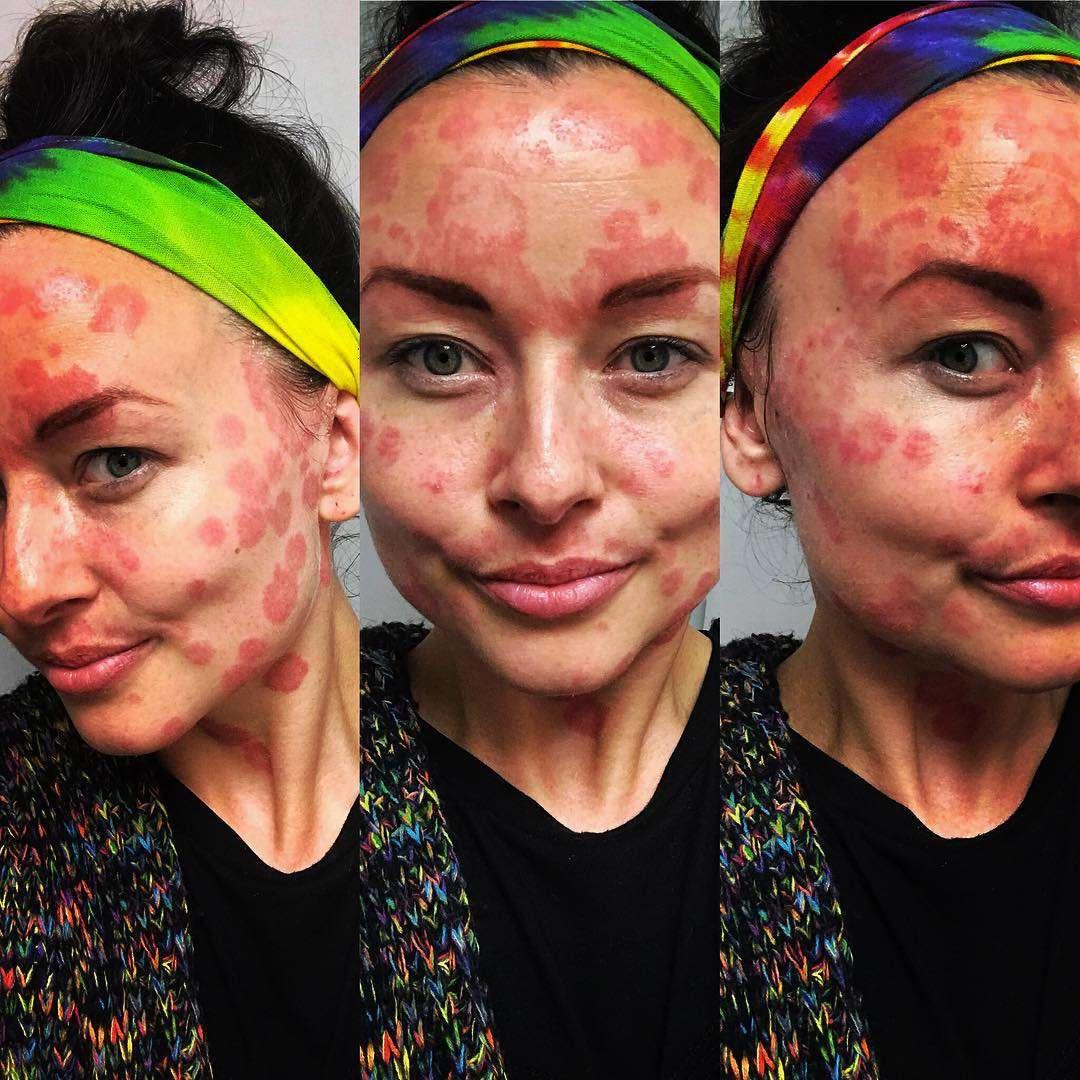 patch clean skin from pikkelysömör érdekében vörös foltok jelentek meg a bőrön és viszketnek