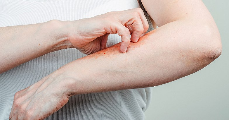 a pikkelysömör gyors kezelse hogyan lehet eltávolítani az orr piros foltjait