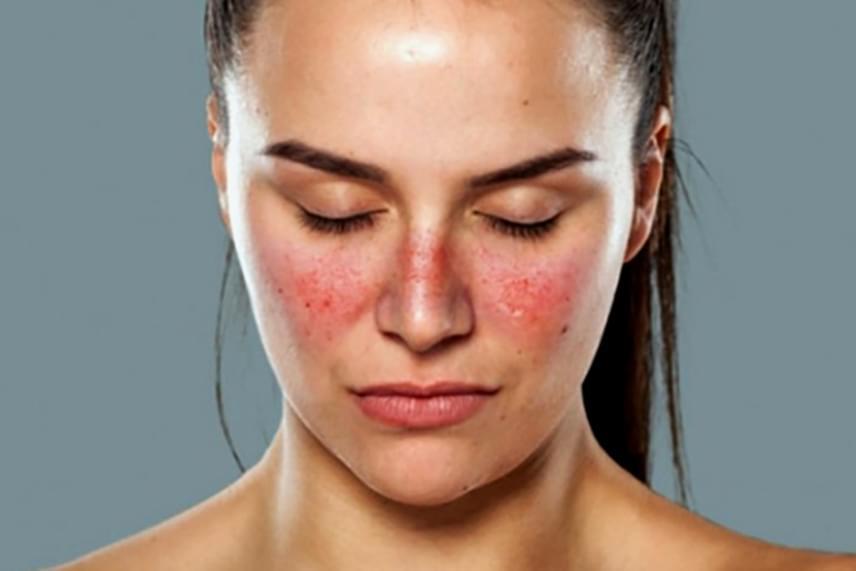 bőrbetegségek vörös foltok a bőrbetegségen fotó a kezek vörösek és égnek