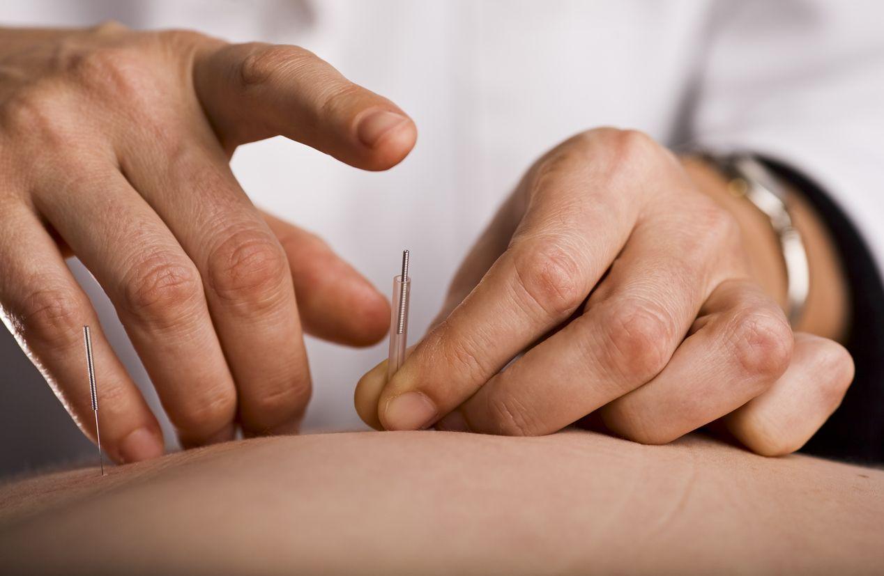 A pikkelysömör (psoriasis) indigó kezelése