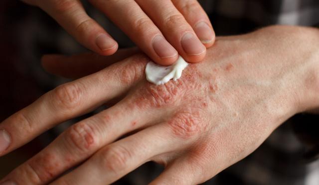 hogyan kezelik pikkelysömör külföldön miért vörös foltok a lábak bőrén
