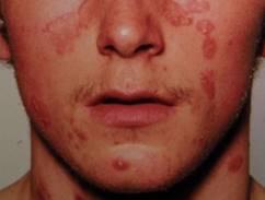 hogyan lehet az arcon pikkelysömör gyógyítani? szóda beöntés a pikkelysömör kezelésére