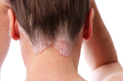 Hogyan lehet az arcon pikkelysömör gyógyítani?, Hogyan tehető tünetmentessé a pikkelysömör?