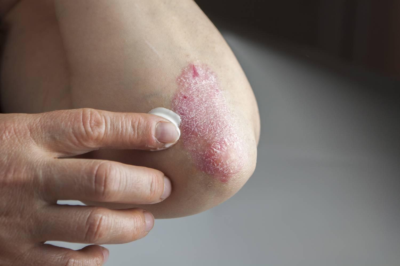 anyajegy piros a lábán