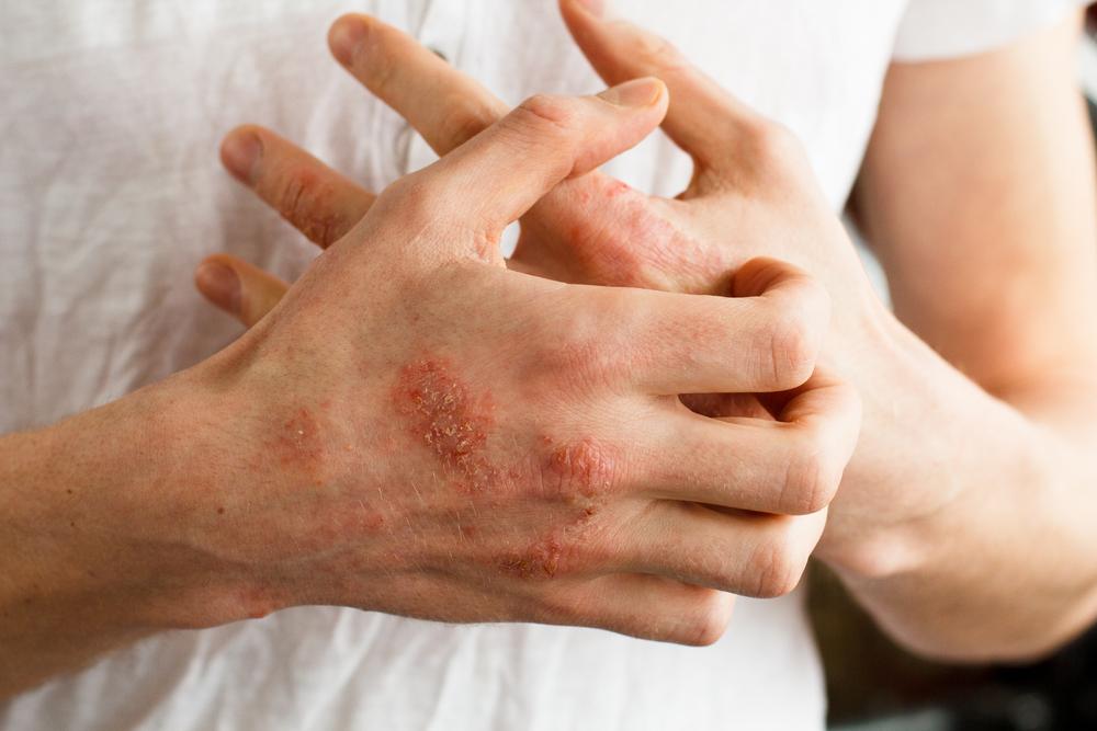 kitörések a bőrön vörös foltok formájában, viszketés a lábakon mit kezdjen az arcon lévő vörös foltokkal