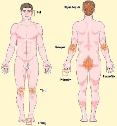Pikkelysömör kezelésére ágyi poloska