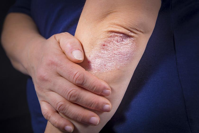 vörös foltok jelentek meg az ujjakon és a lábujjakon