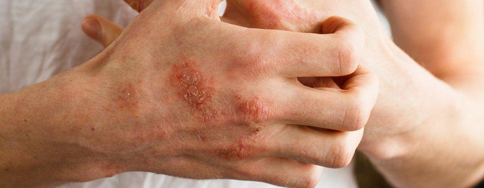 Spain psoriasis kezelése