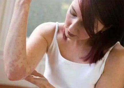 Megszabadult a pikkelysömörtől | TermészetGyógyász Magazin