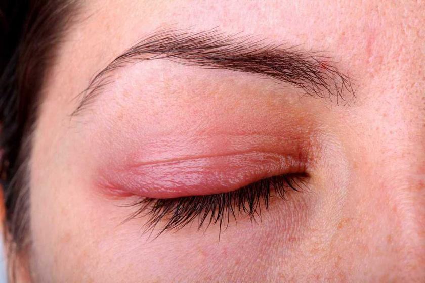 pikkelyes vörös folt a szem alatt vörös foltok a lábakon a térd közelében