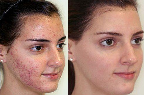 alternatív kezelés a szőrös pikkelysömörhöz