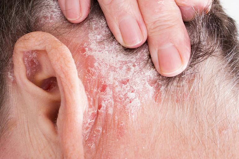 pikkelysömör kezelése sterlitamak vörös foltok pikkelyesedéssel a test közepén