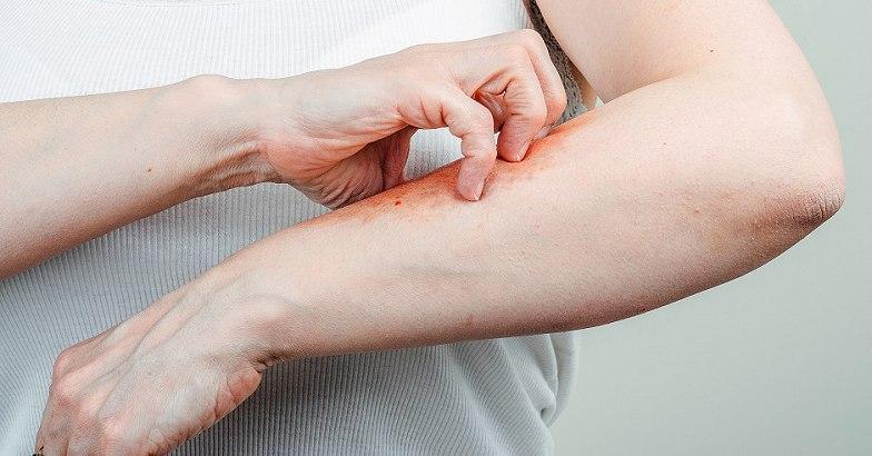 vörös foltok a karokon és a gyomor viszket távolítsa el az orr körüli vörös foltokat