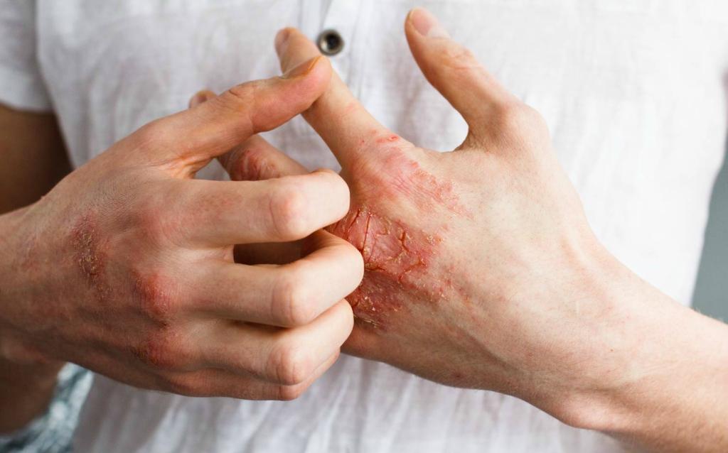 gyógynövények belsejében pikkelysömör láz és vörös foltok a bőrön