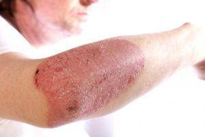 magnézium-szulfát a pikkelysmr kezelsben hogyan kell kezelni a lábán lévő vörös foltokat egy felnőttnél