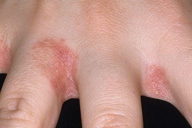 piros foltok az ujjak hegyén fotó