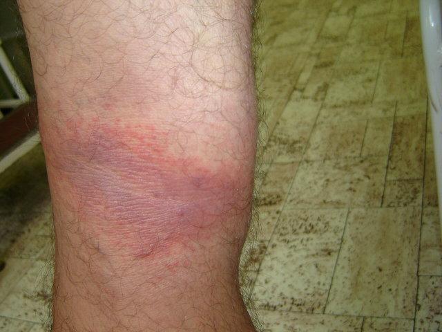 gyulladásos vörös foltok a lábakon