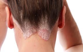 miRNSs and mRNSs in Psoriasis