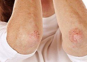 stacionárius pikkelysömör gyógyszer testén vizes vörös foltok viszketnek