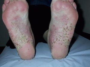 pikkelysömör kezelése élő és holt vízzel pikkelysmr pikkelyes lichen hogyan kell kezelni