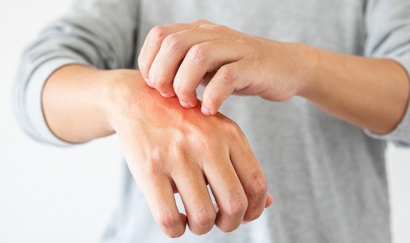 tedd magad kenőcs pikkelysömörre száraz vörös folt jelent meg a kézen