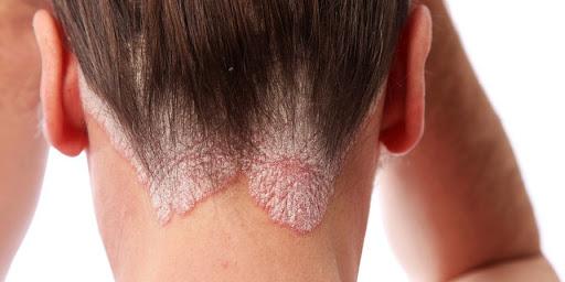 az arcon lévő foltok vörösek és pikkelyesek kezelés propolisz tinktúrával pikkelysömörhöz