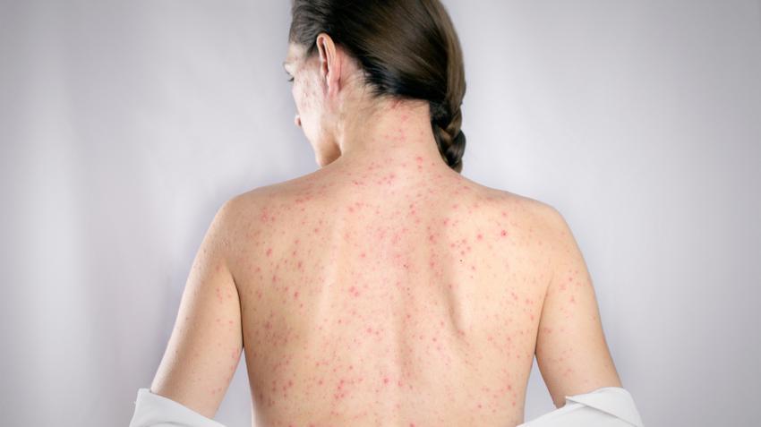 vörös foltok jelentek meg a testen nagyon viszketve diéta pikkelysömörben szenvedőknek
