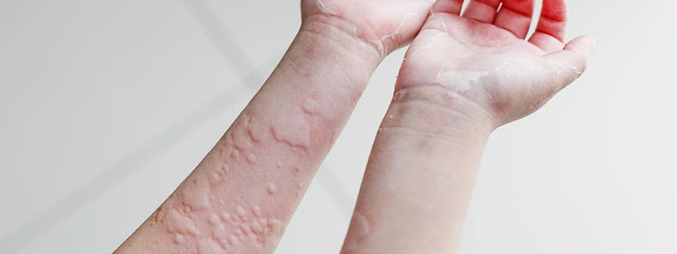 Súlyos allergiás reakció: az angioödéma - Blikk