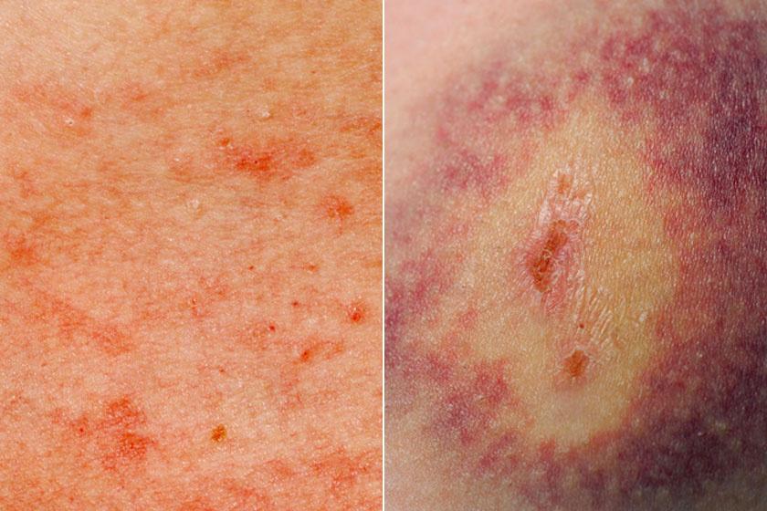 bőrkiütés vörös foltok formájában felnőtteknél a könyökön